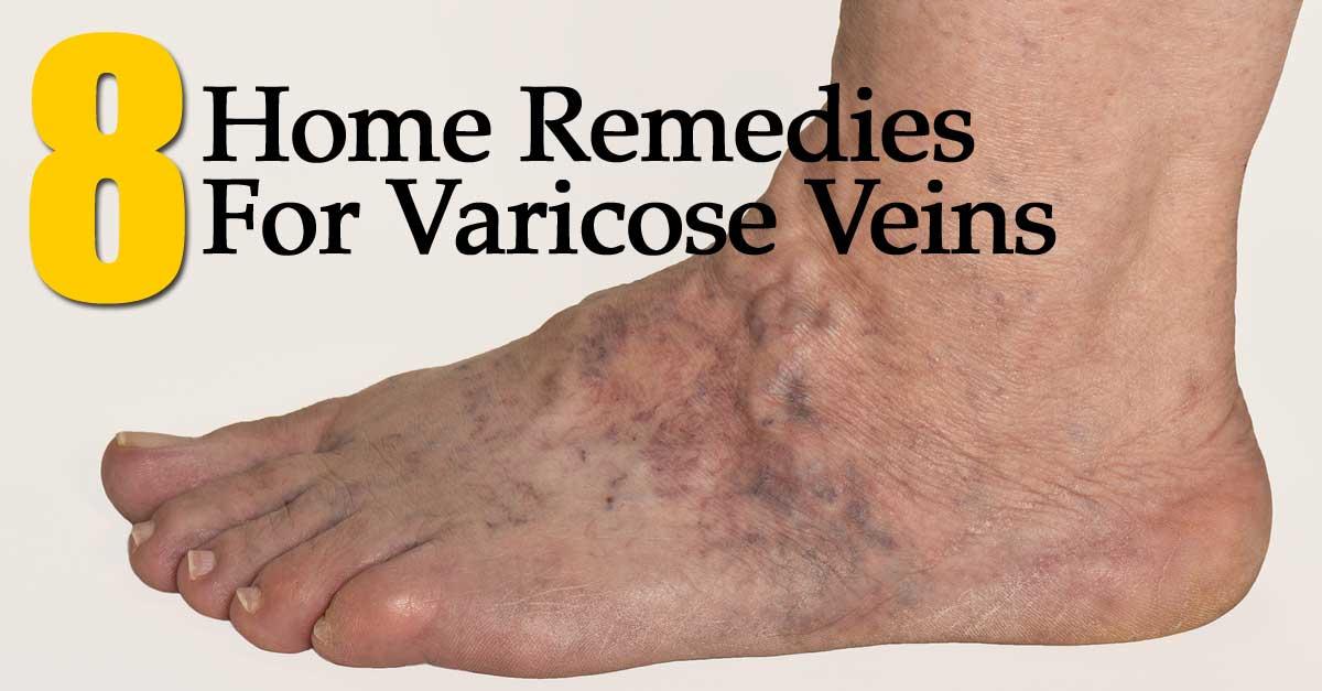 varicose-veins-remedies-093014